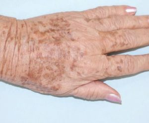 DYE-VL dłonie przed